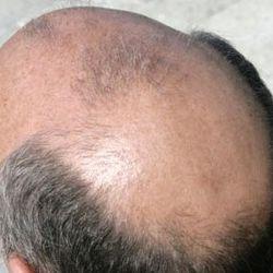 Quale vitamina è responsabile di crescita e densità di capelli