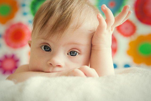 Sindrome di Down, Cassazione nega risarcimento a genitori di Lucca