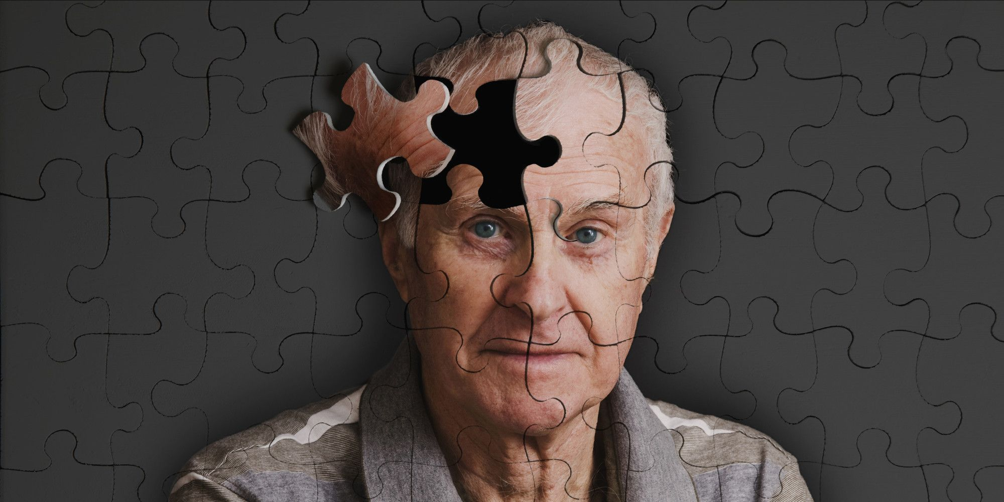 Trauma Cranico Accresce Rischio Alzheimer