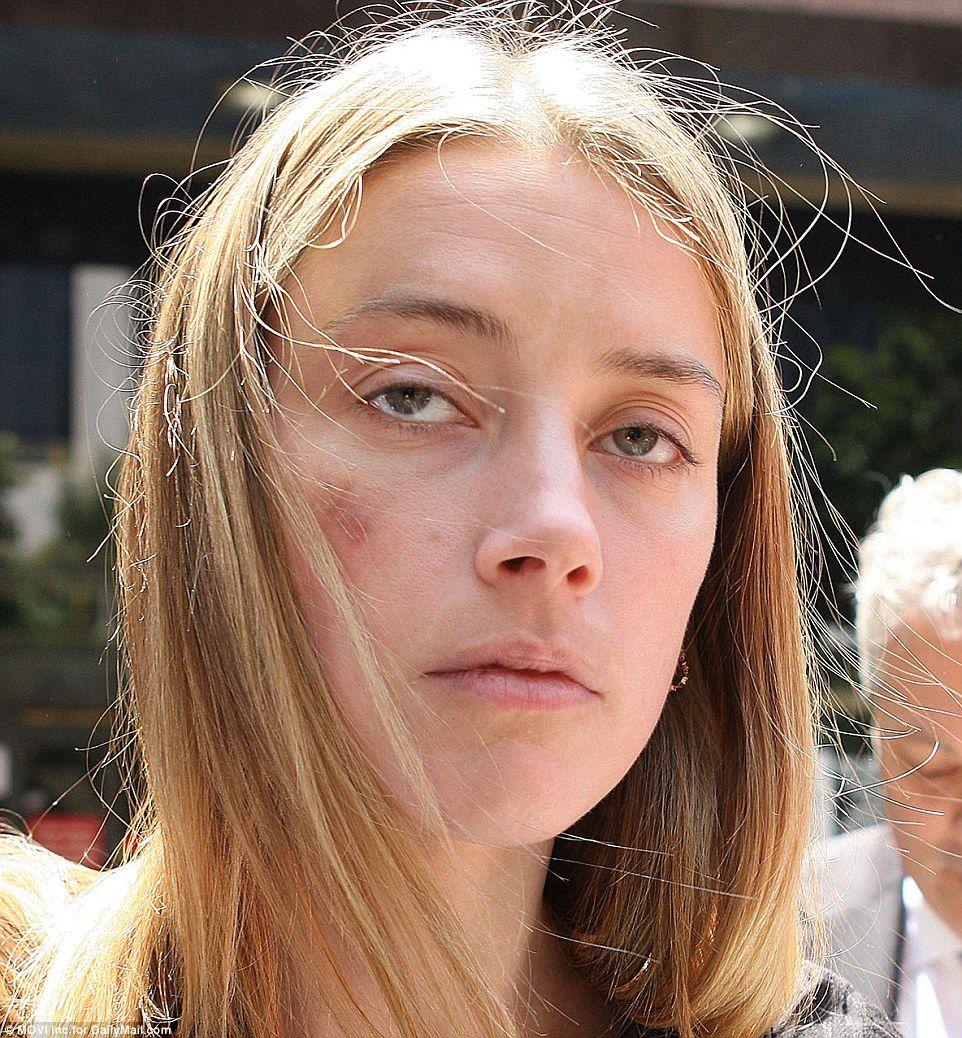 Amber Heard picchiata da Johnny Depp, foto che mostra lividi