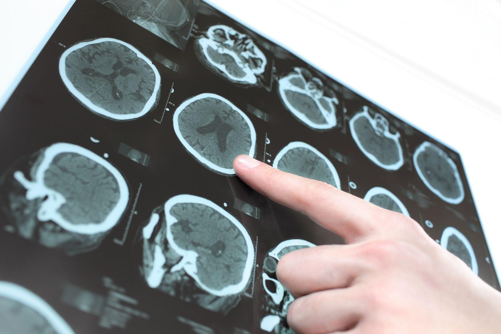 Aspirina contrasta tumore al cervello?